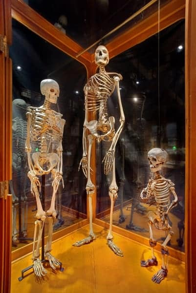 Human skeletons at the Mutter Museum in Philadelphia.
